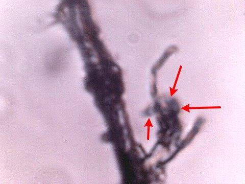 anomalous fiber 2