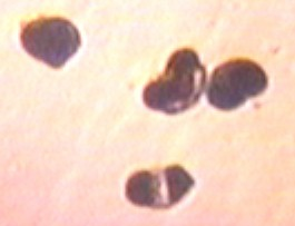 bean shaped cells