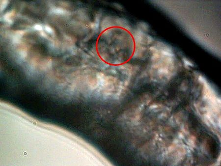 MORGELLONS: MORPHOLOGY CONFIRMED 9
