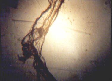 microscopic 5