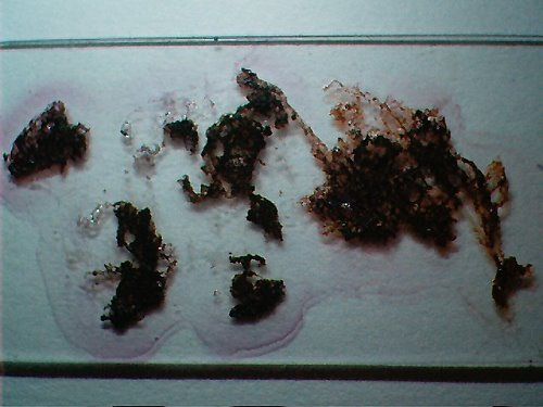 """MORGELLONS:"" THE WINE – PEROXIDE TEST"